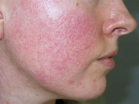 Rosacea Images Rosacea Seeing In Primary Care Bpj 75 May 2016