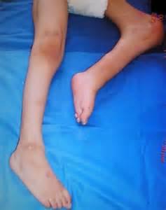 Fixed Flexion Deformity Knee