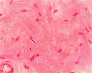 SMOOTH MUSCLE (400X) is non-striated, and the individual ...
