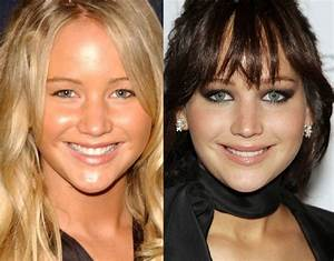 15 Celebrities You Didn39t Realise Have Had Plastic Surgery  CollegeTimescom