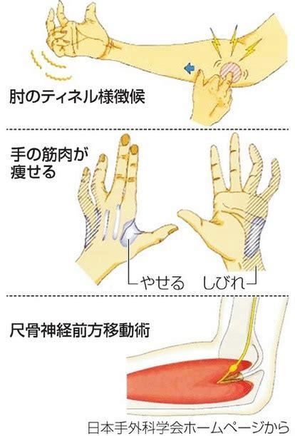 右手 の 痺れ