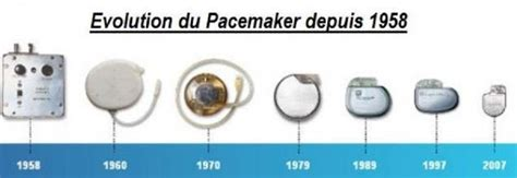 pacemaker chambre 2 le pacemaker