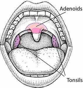 Enlarged Tonsils And Adenoids In Children
