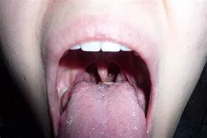 Bumps On Back Of Tongue Near Throat - Gay And Sex