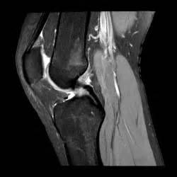Normal Knee Mri