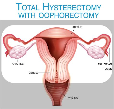 What is a hysterectomy?