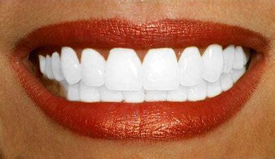 comment avoir des toilettes blanches comment avoir des dents blanches mon grimoire
