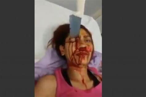 vid 233 o une femme survit avec un couteau de cuisine plant 233 dans la t 234 te au br 233 sil lebabi net