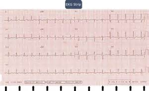 EKG Strip Interpretation