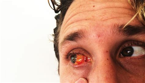 what color is your blood before it hits the air i got a pterygium cut out of my eyeball and i learned