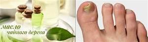 Чайное дерево эфирное масло при грибке ногтя