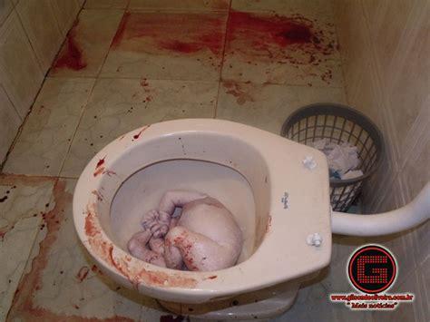 Cytotec Sintomas Investigação Mulher Aborta Em Vaso Sanitário Gilson De
