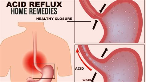 5 Best Home Remedies For Acid Reflux
