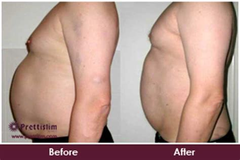 Non Surgical Tummy Tuck Treatment In Mumbai  Prettislim. Medical Malpractice Attorneys In Indianapolis. Maternity Care Coalition Gisele Bundchen Nose. The Network Support Company Seo Sales Leads. Free Online Classes For Medical Billing And Coding. Attorneys For Wrongful Termination. Texas Safety Driving Course Home Town Quotes. Retirement Homes Scottsdale Az. Connecticut Rehab Centers Fortesta Gel Dosage