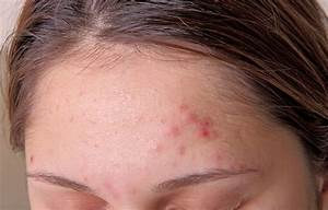 Are People With Acne At Risk For Depression