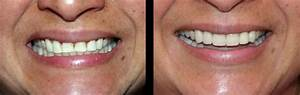 Before and After Cases, Find a Dentist in Glendale, CA