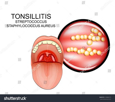 Illustration Inflammatory Diseases Throat Stock Vector