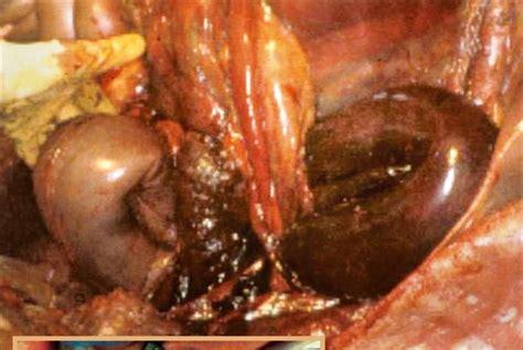 epiploic foramen entrapment colic random event  risk