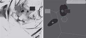 Image Reconstruction   A  Freehand Spect Image Of The Left