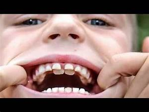 Humans With Two Rows Of Teeth | www.pixshark.com - Images ...