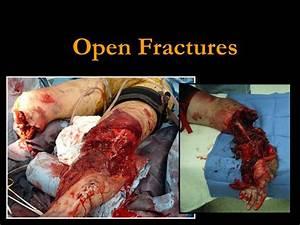 Open Fractures. - ppt video online download