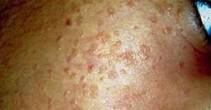 Pictures  Images  Photos Of Warts On Face
