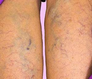 Homeopathic medicines for Varicose Veins - Homeopathic ...