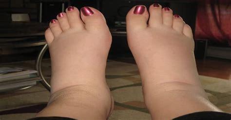 natural remedies  swollen ankles legs  feet