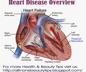 Heart Disease Related Keywords - Heart Disease Long Tail ...