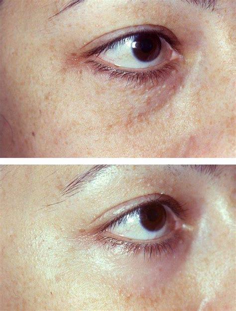 Syringoma Treatment Before & Afters | Áda Aesthetic Medicine