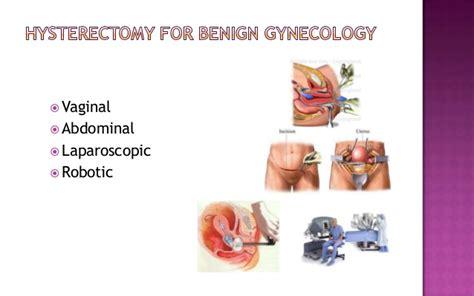 Hysterectomy past present & future
