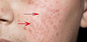 Папилломы плоские на лице лечение