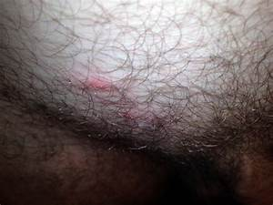 I Noticed 3 Red Pimple Like Bumps This Morning On My Pubic