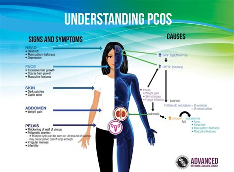 Pcos A Nightmare For Women How And Why Steemit