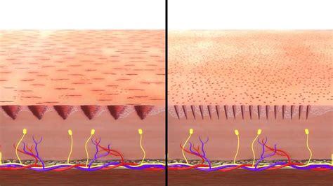 derma roller 1 5 micro needling dermapen vs dermaroller