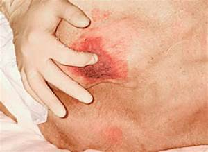 A Grade 2 Decubitus Ulcer With Erythema That Does Not