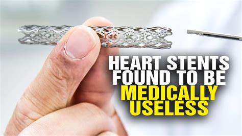 Heart Stent Fail Shocking Study Shows Heart Stents Are