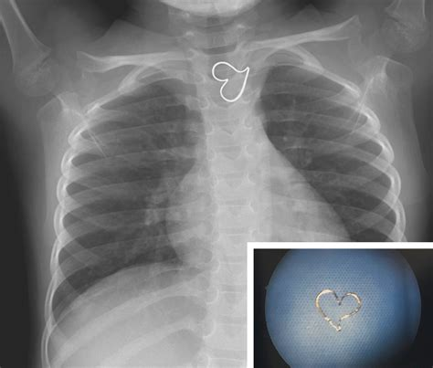 heart throat ray mouse shaped lodged pendant esophagus swallow perfect ingested metal shape foreign body gold nejm management showed