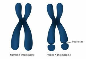 What is Fragile-X syndrome? - Facts - yourgenome.org Fragile X Syndrome
