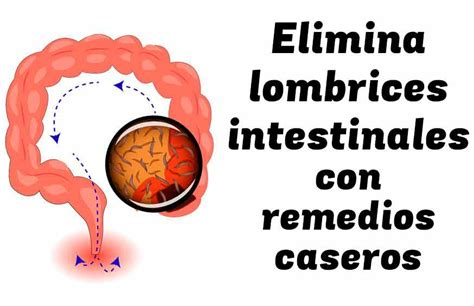 eliminar las lombrices intestinales  remedios naturales