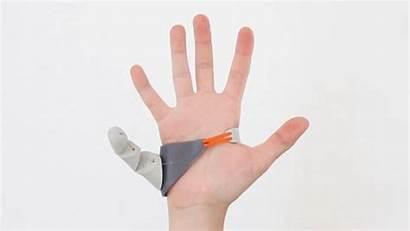 Third Prosthetic Finger Dani Reddit College Prosthetics