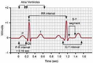 Normal Electrocardiogram Tracing  Waves  Intervals And