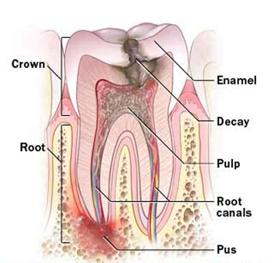 Why Do We Need Root Canal Treatment  Dantah. Camping World Charleston Sc Rv Sales. Best Mba Programs In Florida. Cheap Car Rentals New Zealand. How Much Can I Get Preapproved For. Colleges That Offer Free Online Classes. Car Insurance Madison Wi Bike Theft Insurance. Get Life Insurance Quotes Online. Rheumatoid Arthritis Factor Triple M Roofing