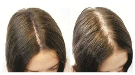 Female Pattern Thinning Treatment For Women