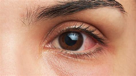 Pink Eye Symtoms Diagnosis Treatment Health