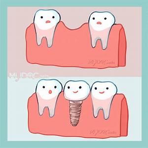 Best Dental Implant In Johor Bahru