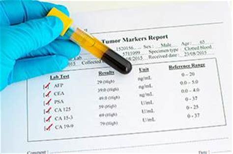 specific antigen psa test fact sheet ona