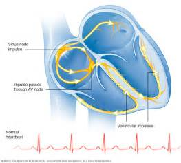 Normal heartbeat  Heart Diseases Arrhythmia