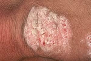 Отличие псориаза от других заболеваний