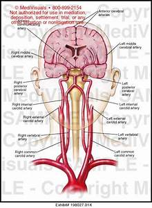 Blood Supply To The Brain Medical Illustration Medivisuals